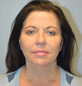 Facelift Before and After Pictures Huntsville, AL