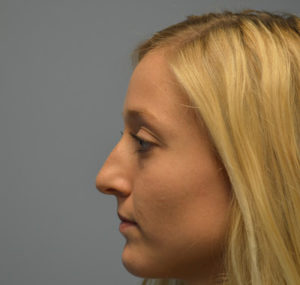 Rhinoplasty Before and After Pictures Huntsville, AL