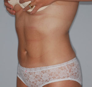 Liposuction Before and After Pictures Huntsville, AL