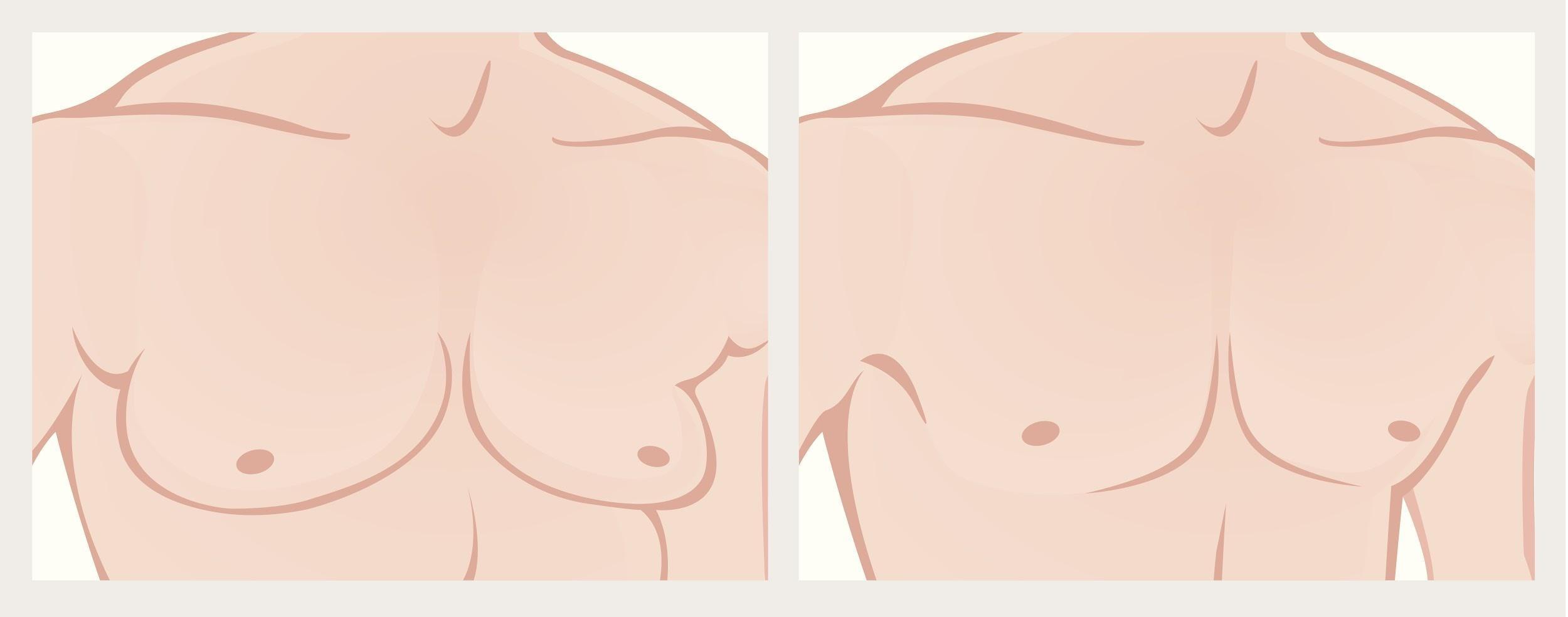 Gynecomastia in Northern Alabama and the Huntsville Area