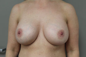 BREAST AUGMENTATION BEFORE AND AFTER PICTURES IN NORTHERN ALABAMA AND THE HUNTSVILLE AREA