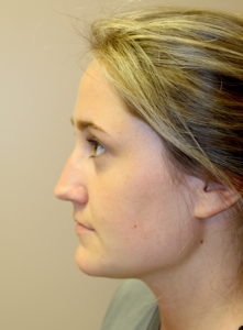 Rhinoplasty Before Pics