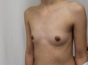 breast augmentation before photos