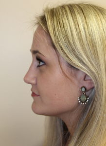 Rhinoplasty After photos