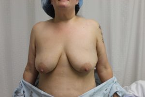 Breast Lift before and after photos