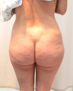 Liposuction and fat transfer before and after photos