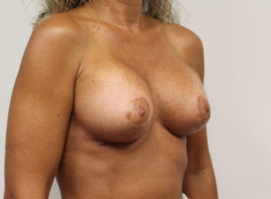 Breast Augmentation with Lift Before and After Pictures Huntsville, AL