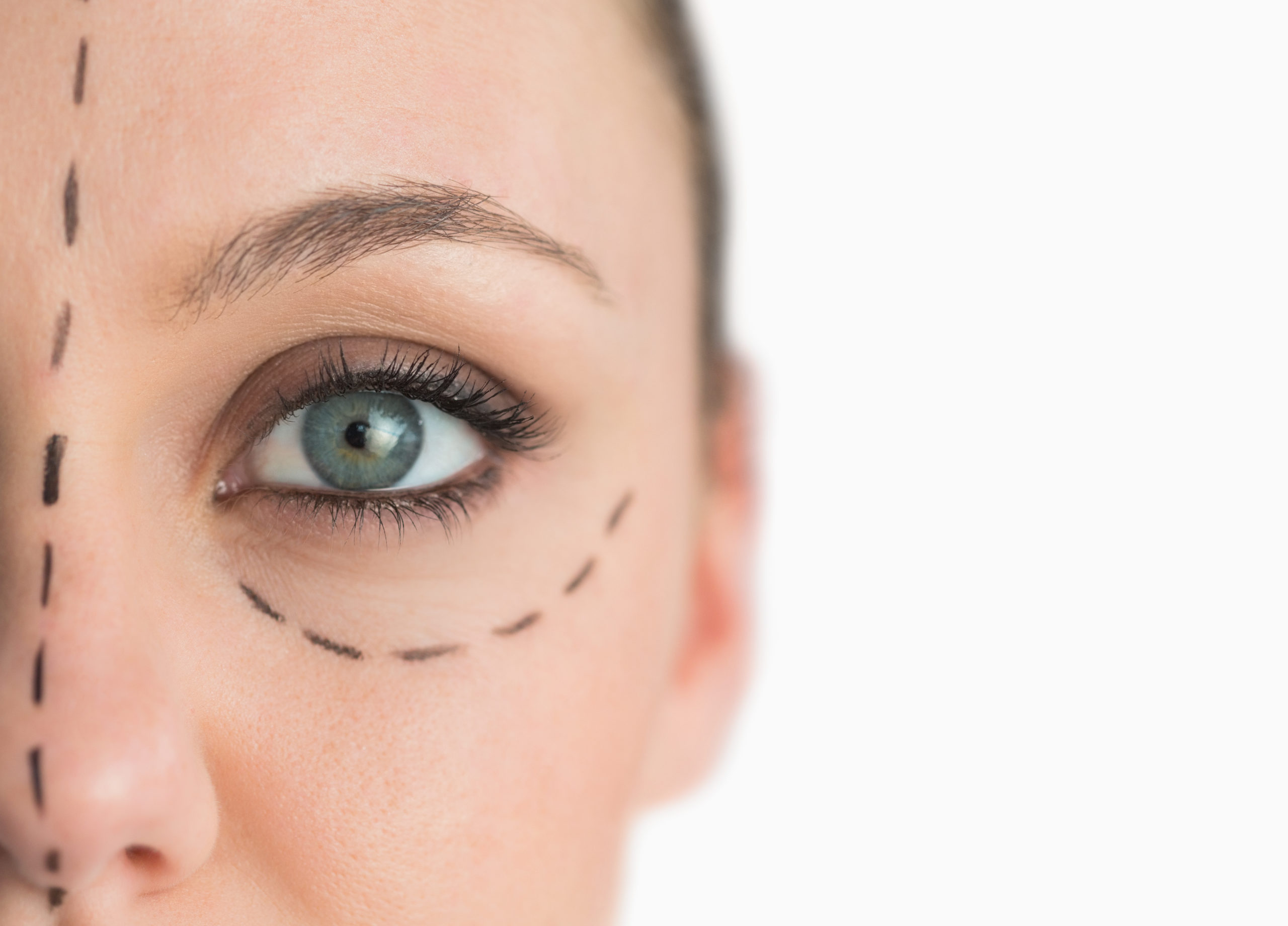 Brow Lift in Northern Alabama and the Huntsville Area
